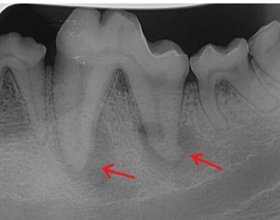 Tulehdusreaktio hampaan juuren kärjissä