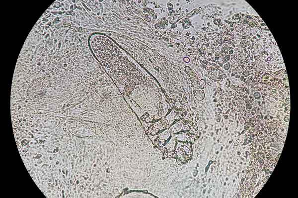 Sikaripunkki mikroskoopin alla
